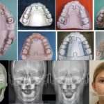 ALF ортодонтия: что это такое