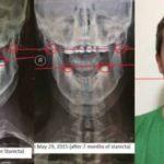 Боль в шее, мозговой туман: как я выбрался из полного коллапса