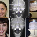 Ортокраниодонтия: философия и базовый алгоритм лечения