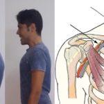 Синдром позвоночной артерии и осанка