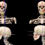 Сколиоз и остеохондроз: взаимосвязь и совершенно новый подход к лечению