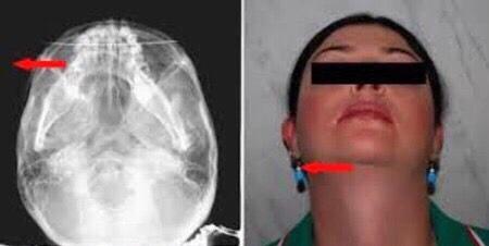 lateral strain, skull