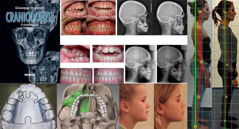 orthocraniodontics
