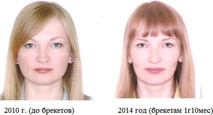 braces, change, face