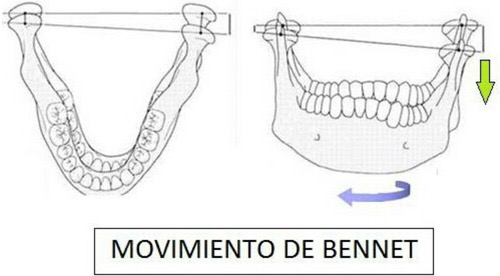benett, movement