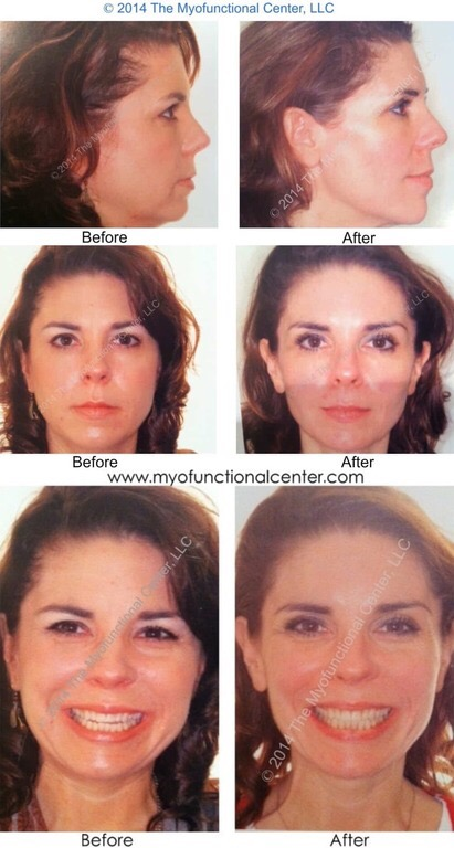 myofunctional correction, before and after