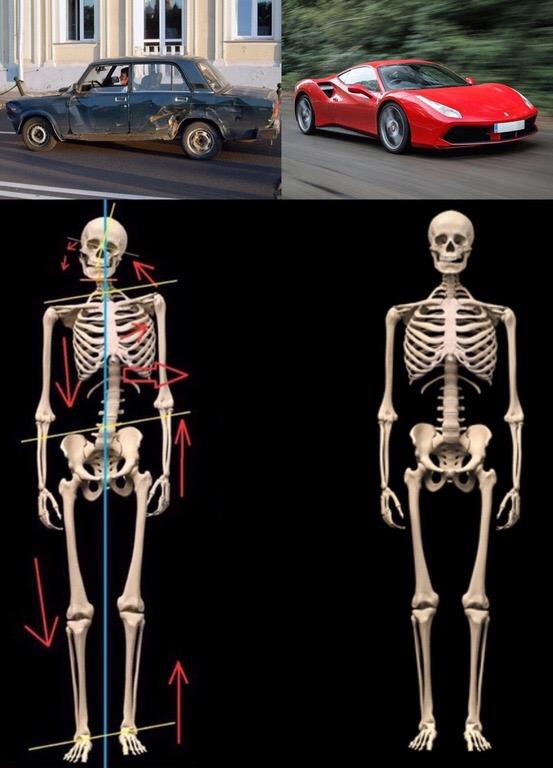 skeleton, structure