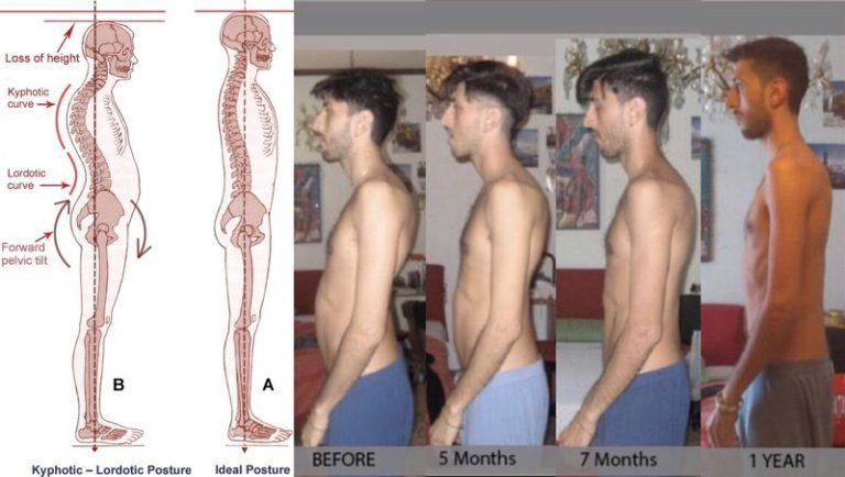 lumbar, lordosis, biomechanical, treatment