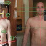 Дистония: опыт биомеханического лечения
