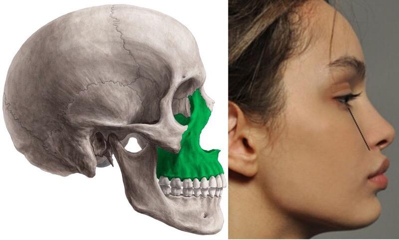 Максилла — кость красоты, или все о верхней челюсти