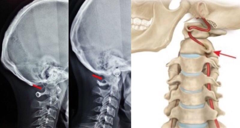Аномалия Кимерли, синдром позвоночной артерии и челюсть