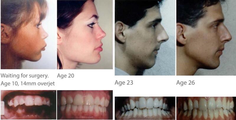 Orthotropics: чем отличается от традиционной ортодонтии