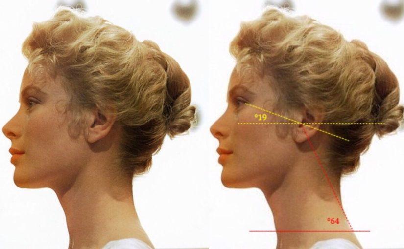 Что такое горизонтально развитое лицо, и как его измерить